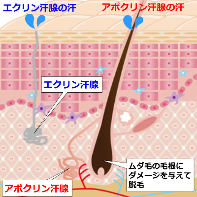 ワキのムダ毛と肌断面図